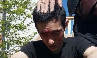 В Казани наркоман изувечил себя на глазах у детей